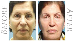 wrinkle fix montreal take away wrinkles using the best facial treatment in Montreal