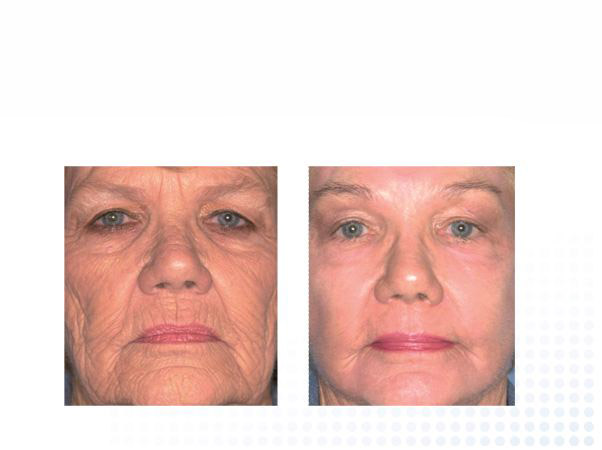Skin Tightening Montreal