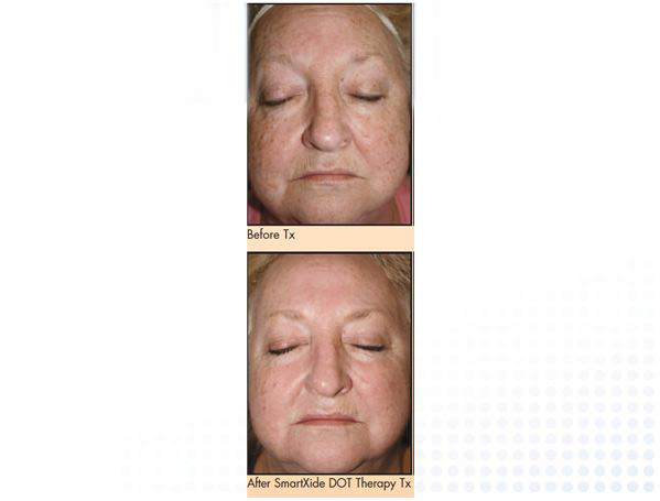 Skin discoloration montreal