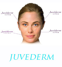 Juvederm Montreal